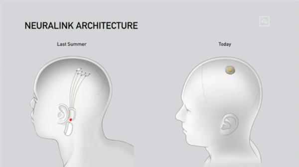 马斯克用活猪演示脑机接口技术:实时读取猪脑信息 心灵感应成真了