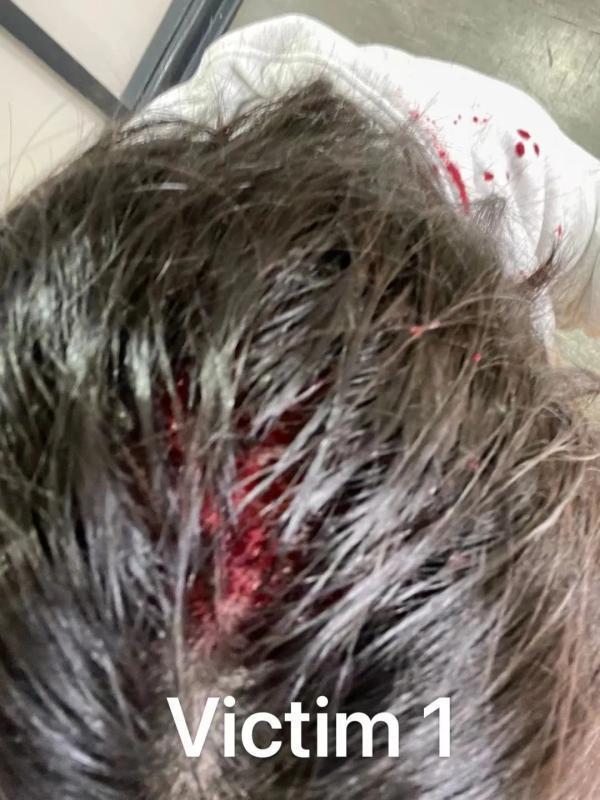 多名中国留学生在英国遇袭!受害者多为女生,有人头被砸破