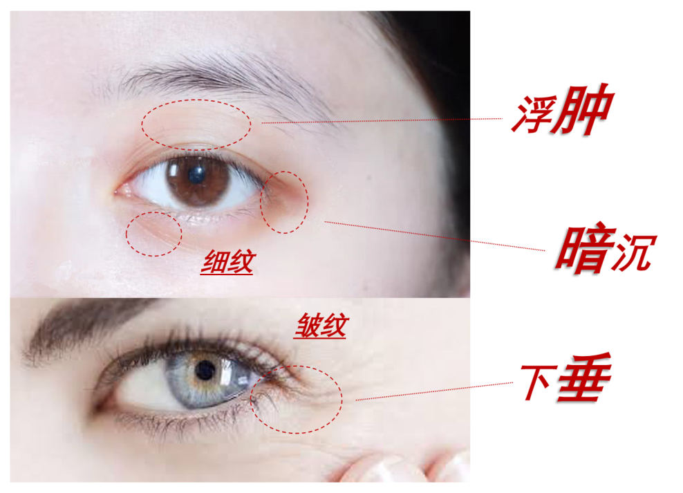 Skin care when the injury is not very strong insult moment插图8