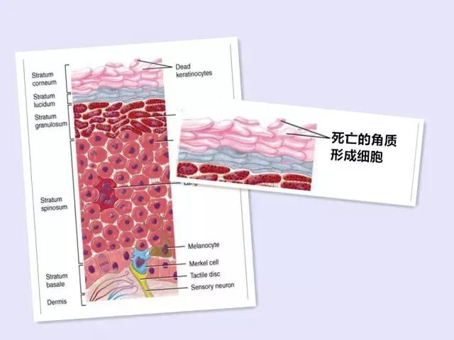 Skin care when the injury is not very strong insult moment插图13