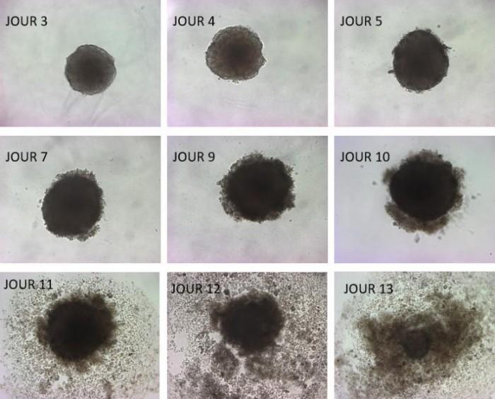 科学家发现使DHA和其他相关脂肪酸减缓肿瘤发展的生化机制