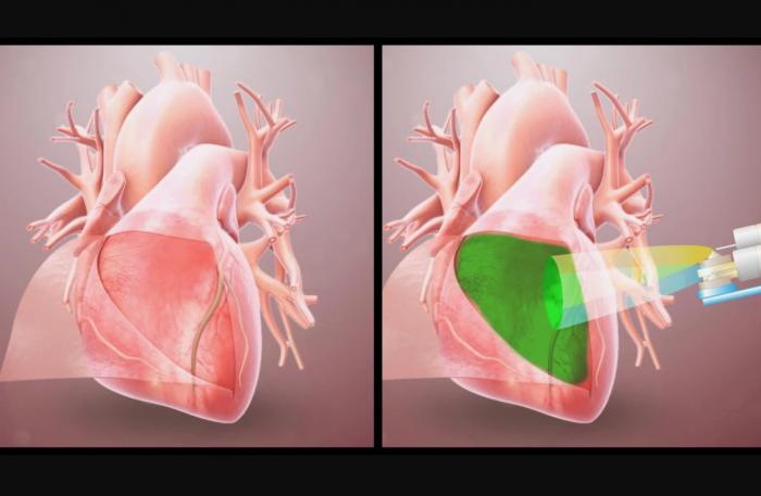 科学家开发用于心脏的水凝胶  或能防止一种常见的外科手术后并发症