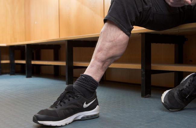 那张英超著名断腿照片的故事:曼联门神吓到呕吐