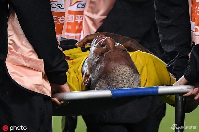 粤媒:塔利斯卡伤势打乱恒大计划 七月踢申花或复出