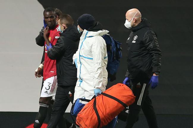 曼联头号倒霉蛋!被队友撞伤下场 刚出状态又倒了