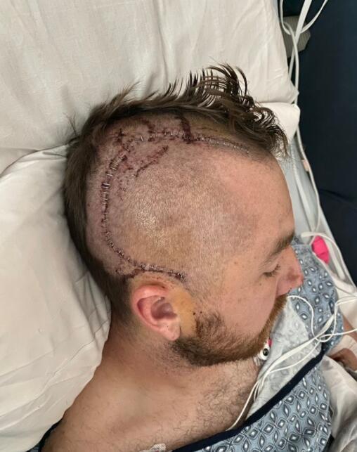 棒球选手被高速球正中脑袋 右边脑壳几乎被砸开