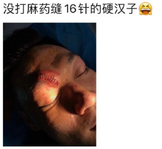 硬汉!张宁眉骨流血被送往医院 未打麻药缝16针