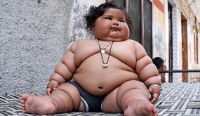 """印度婴儿体重34斤 成""""米其林小胖人"""""""