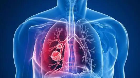 """肺结节与肺癌:剪不断,理""""不""""乱!"""
