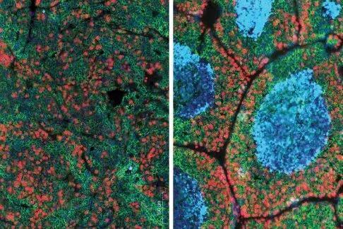 敲除CD4+T细胞中TGF-β受体后,幼鼠肿瘤细胞物化亡(右图蓝色片面)