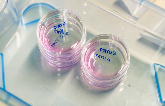 Fatu的4枚卵细胞和Najin的3枚卵细胞,都达到可以受精的成熟状态© Ami Vitale / Ol Pejeta