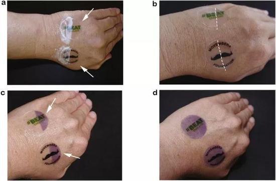 在贴纸的检测下,涂抹防晒和未涂抹防晒的差别(c),以及几小时后有效成分降解后的情况(d)