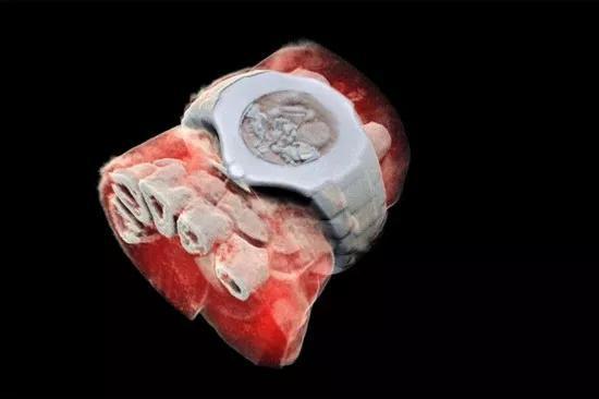 图为MARS扫描仪拍摄的带手表手腕部分的3D彩色X射线图像,白色的是软组织中的部分手指骨,连手表的结构都能完整重现(图片来自网络)