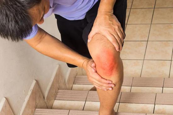 软骨组织的损失是造成关节疼痛和关节炎的重要原因(图片来源:123RF)