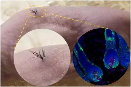 利用干细胞培养出的人类毛发,在小鼠的背部生长出来。(图片来源:Sanford Burnham Prebys)