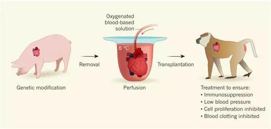 研究提供的器官保存和灌流系统对人类器官移植具有重要启示。图片来源:Success for cross-speciesheart transplants