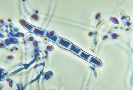 红色毛癣菌