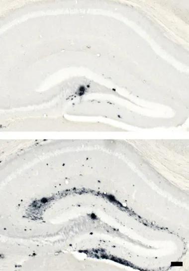 """在注射aducanumab后,幼鼠脑中的Aβ""""栽子""""缩短,所以后期触发的蛋白荟萃要清晰少于对照组"""