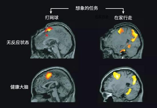 部分患者看起来对外界刺激无反应,但是其大脑活动与健康个体的类似。