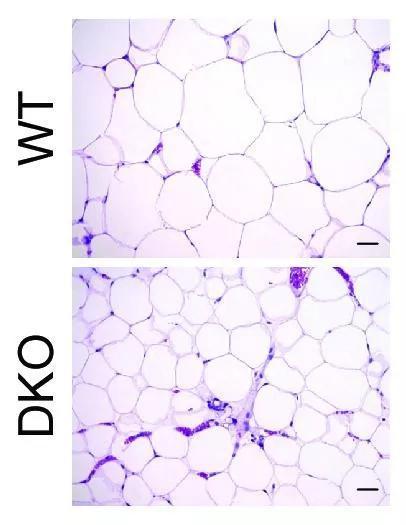 ▲缺失miR-181的幼鼠(DKO),在。高脂饮食的条件下,脂肪细胞的个头照样幼幼的,不像清淡幼鼠那样胀大(图片来源:参考原料[1])