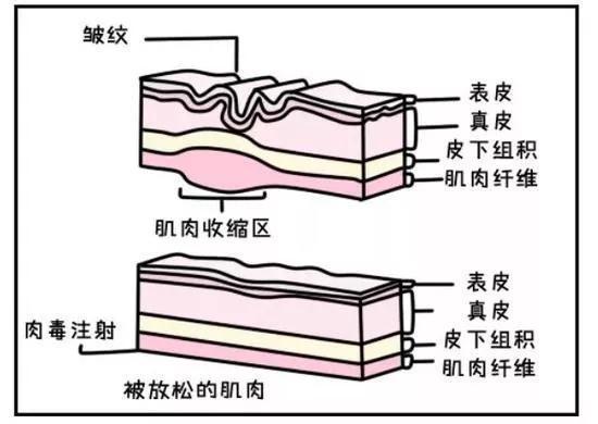 肉毒素除皱的机制(图片来源:360个人图书馆)