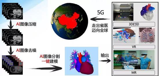 刚刚,中国完成首例AI+5G心脏手术!