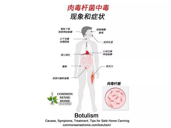 肉毒素中毒的现象(图片来源:commonsensehome.com/botulism/)