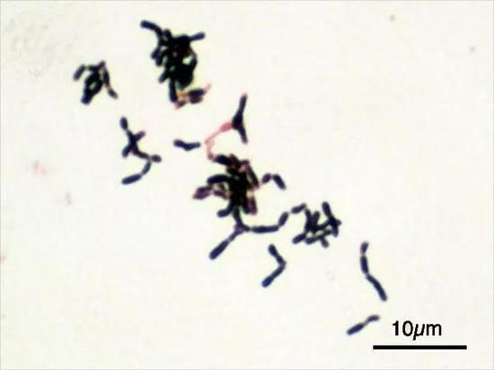 图2 双歧杆菌显微照片,其代谢产物有轻微的奶味 (图片来源:双歧杆菌维基百科)