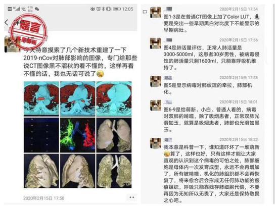 ▲网传新冠肺炎患者的肺部会被病毒啃噬,出现很恐怖的情况(图片来自微博)