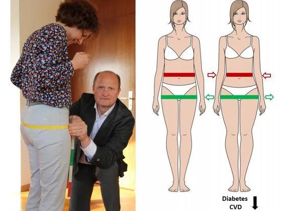 脂肪储存在臀部和大腿(而非腹部),有助于预防2型糖尿病和心血管疾病(图片来源:德国糖尿病研究中心,CREDIT:NORBERT STEFAN)