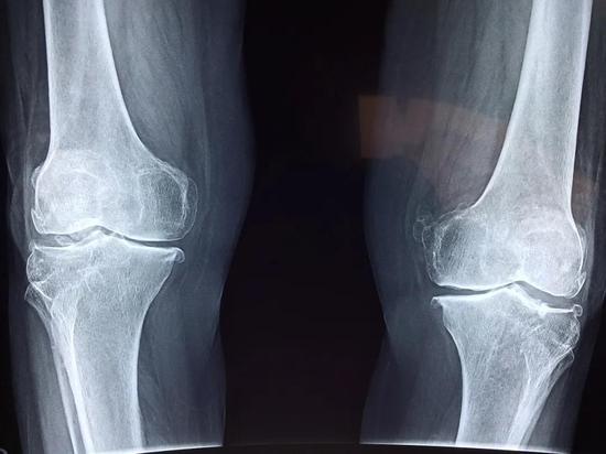 关节磨损还有救吗?斯坦福科学家开发软骨再生新方法!