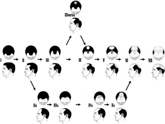 脱发的Norwoode/Hamilton(1975年)分型,分为7级12型 图片来源:Pinterest