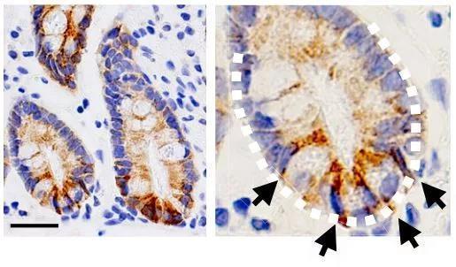 ▲生成酮体的酶(褐色)在人的肠道干细胞中大量表达(图片来源:参考资料[1])
