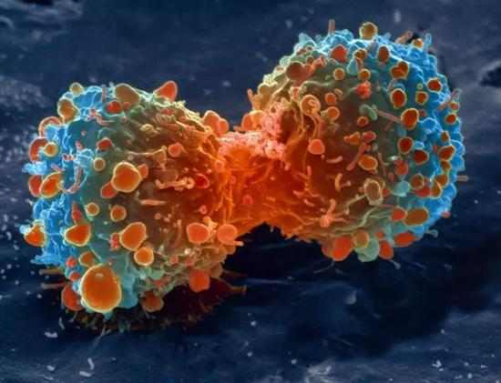 分裂中的肿瘤细胞。肿瘤细胞的昼夜节律经常出现故障。(图片来源: SPL / SCIENCE SOURCE)