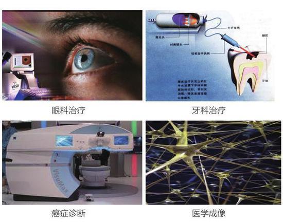 图6 飞秒激光(超强超短激光)治疗近视,来源:公有领域