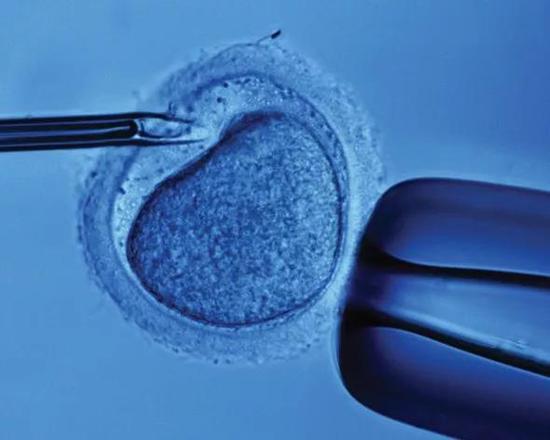 """伯尔尼大学的Stefano Rimoldi等科学家的研究发现,那些通过""""试管婴儿""""技术出生的孩子,相比比普通小孩,有更高的心血管风险[1,2]。文章发表在Circulation和JACC上。"""