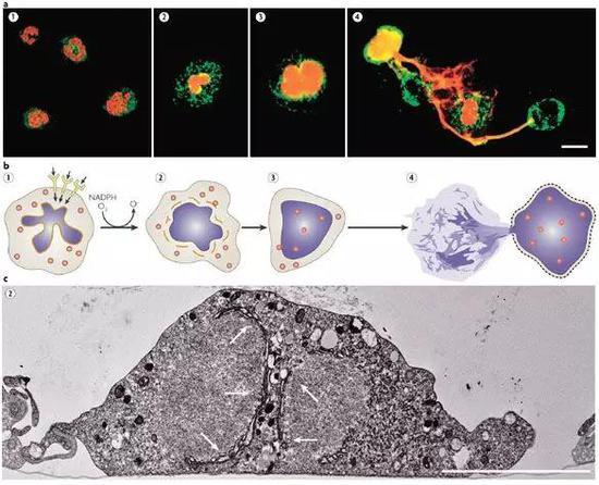 畸胎瘤为什么会复发_为什么抽烟会导致癌症复发?揭秘休眠癌细胞复苏机制|癌细胞 ...