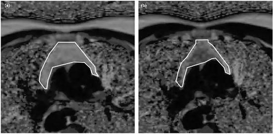 试验志愿者试验前和九个月后胸腺核磁共振图像(图片来源:https://doi.org/10.1111/acel.13028)