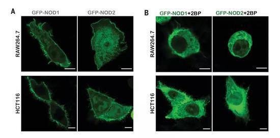 ▲抑制NOD1/2的S-棕榈酰化(图B),会影响它们的正常膜定位(图片来源:参考资料[1])