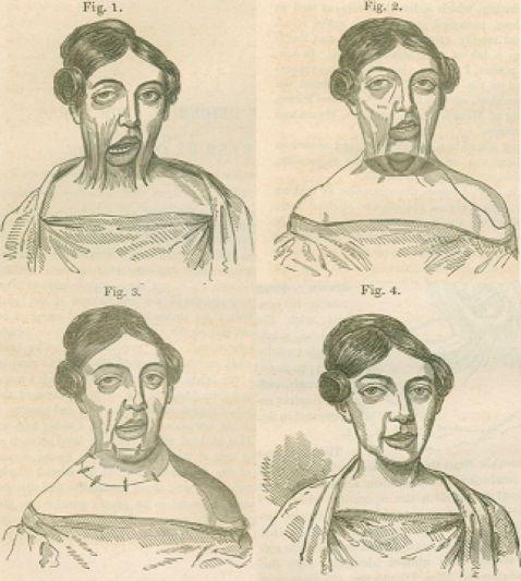 面部主要烧伤毁容的女士,穆特皮瓣手术前后对比。手术后,这名被主要烧伤的女患者头部终于恢复了基本的功能。这是她20年来第一次顺当做出转头、开相符嘴巴。