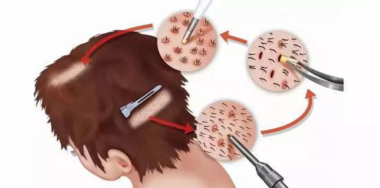 被称为FUE的点状取材方式,患者在局部剃头后,植发医生用空心钻从其后枕部分散提取毛囊单位,之后再种植到脱发区域。图/IC