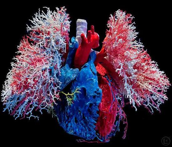 心肺的血管铸形