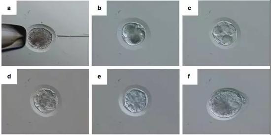 ▲卵母细胞浆内单精子注射。(来源:《自然・通讯》)