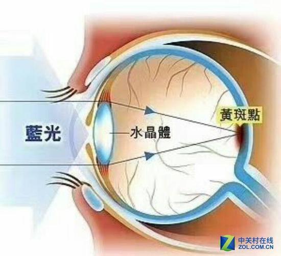 伤害视力的根源其实是蓝光...
