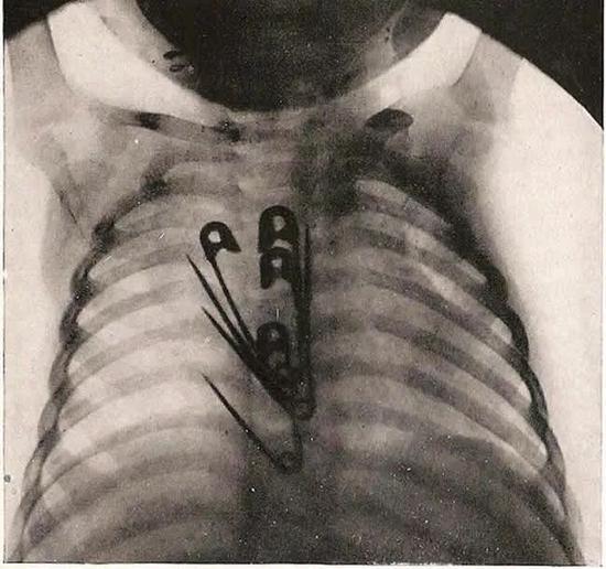 X光片表现编号1071的孩子吞下了4个超大号别针