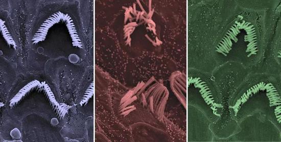▲正常毛细胞,贝多芬小鼠未经治疗时的毛细胞,经过治疗的毛细胞(图片来源: Carl Nist-Lund and Jeffrey Holt)