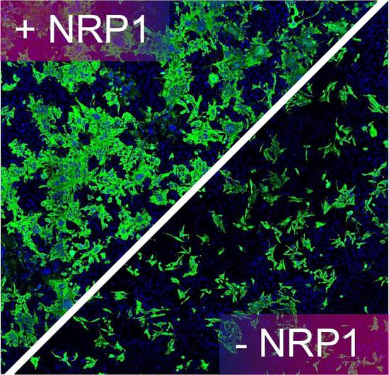 图中绿色的是被新冠病毒感染的人类细胞,在异国宿主因子NPR1的辅助时,病毒的感染性大大降矮