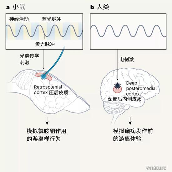 图1 | 诱导游离状态。游离是一种意识改变状态,让人感觉与现实脱离。这种状态能通过药物氯胺酮诱导,也会在癫痫发作前出现。a,光遗传学技术能调控光照射下的神经元活动。Vesuna等人[1]调控了小鼠的压后皮质脑区内的单层神经元。研究团队利用蓝光刺激神经元活动,再用黄光抑制这种活动,结果产生了低频的神经元振荡,与接受氯胺酮的小鼠身上见到的类似。这种振荡能引起具有游离特征的行为。b,作者表明,癫痫患者的对应脑区(被称为深部后内侧皮质)会在癫痫发作前出现相同的振荡。对这一脑区进行电刺激,会引发相同的振荡和游离体验。这两项实验表明,在不同物种中,一个小块脑区发生低频振荡会引起游离。