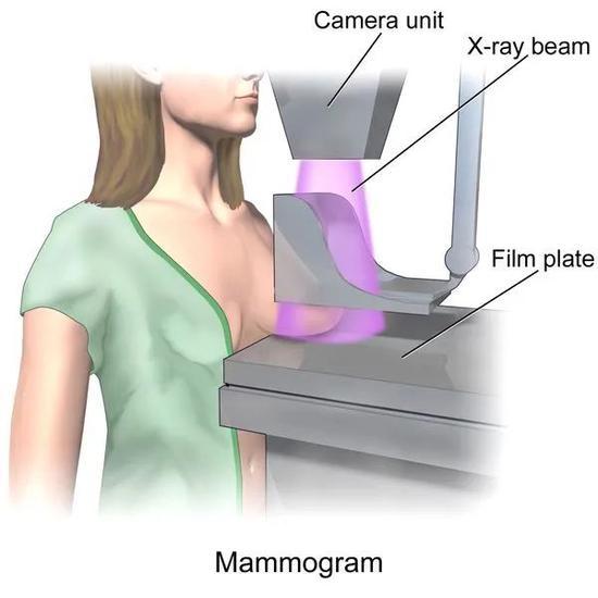乳房造影术拯救了很多生命,但并不是每个年龄段的女性都推荐做这项筛查丨Wikipedia,上传者BruceBlaus