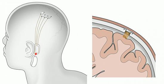 Neuralink的开颅原理